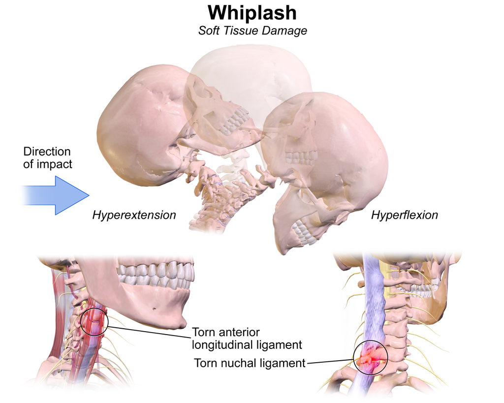 Whiplash Treatment Spine Injury Care Recovery Zannetti Chiropractic